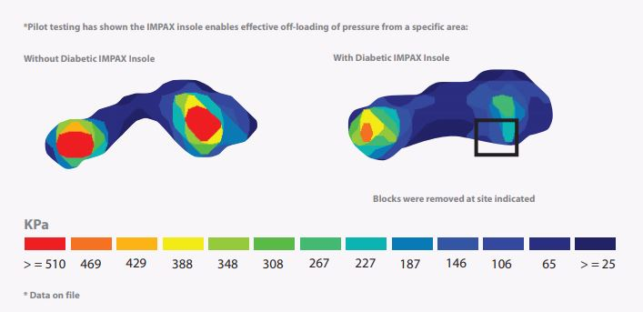 The Impax Grid Insole Offloads Pressure From a Specific Area